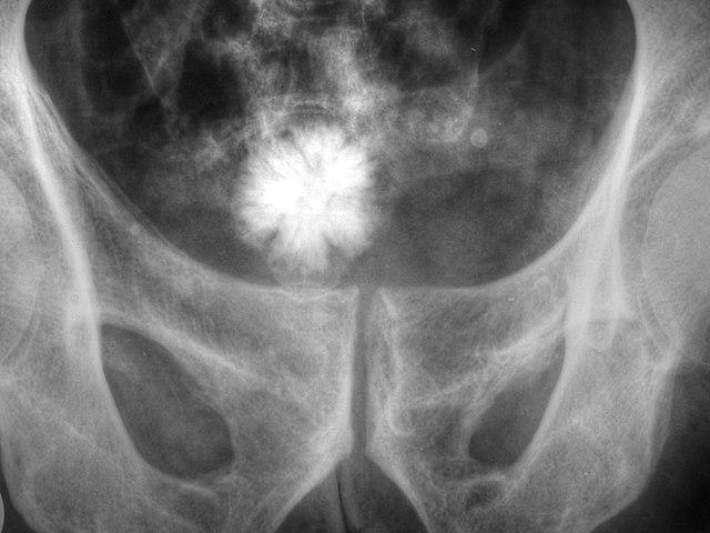 Litiasis urinarias